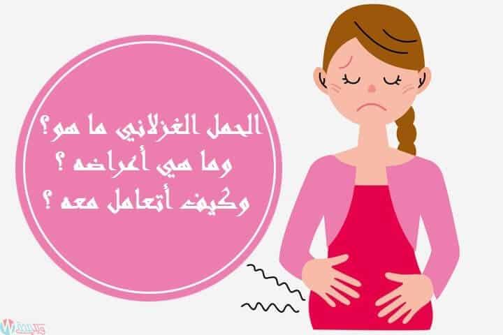 الحمل الغزلاني ما هو وما هي أعراضه وكيف أتعامل معه ؟ 1