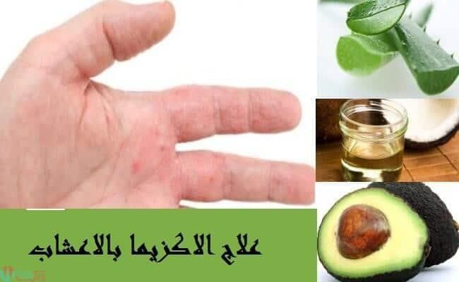 علاج الاكزيما بالاعشاب مجرب 1