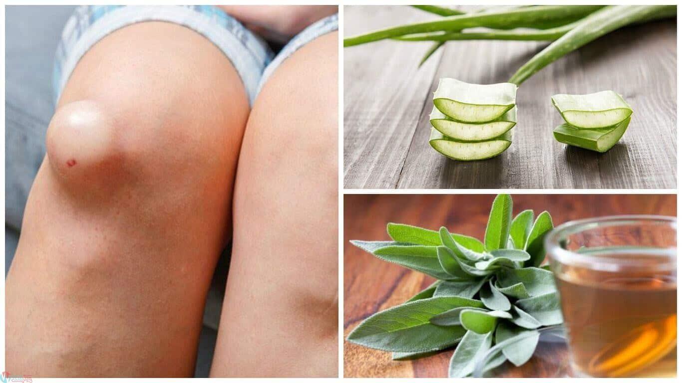 علاج انتفاخ الركبة بالاعشاب 1