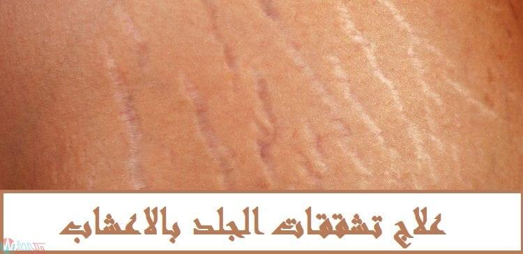 علاج تشققات الجلد بالاعشاب 1