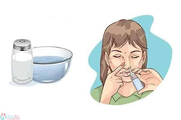 كيفية التعامل مع وعلاج نزيف الانف اثناء الحمل 1