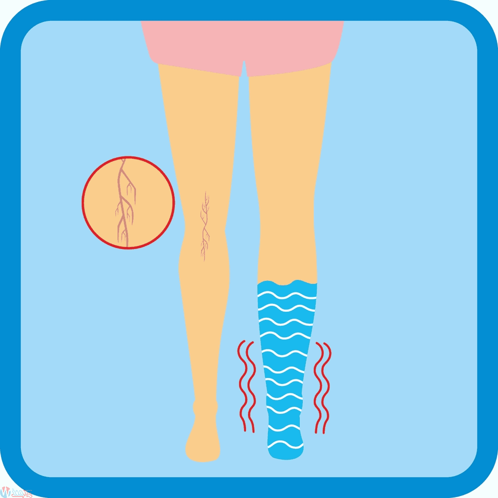 كيف تتخلصي من تورم القدمين في الحمل ؟ 1