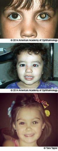 هل التصوير بالفلاش آمن لعيون الأطفال؟ 2